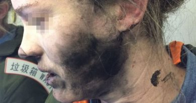 Woman whose headphones exploded during flight