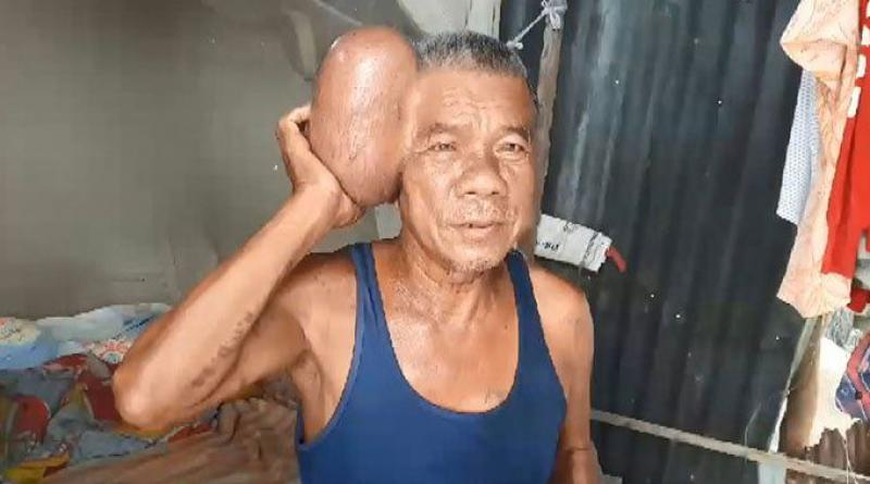 Man with big tumor