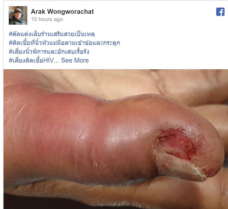 Facebook User: Arak Wongworachat